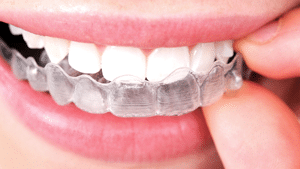 Invisalign The Orthodontic Studio Chevy Chase MD