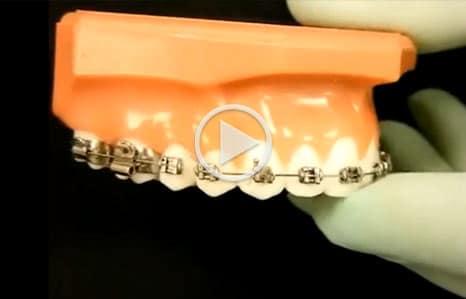 Emergency Care Argyle Orthodontics in Argyle, TX